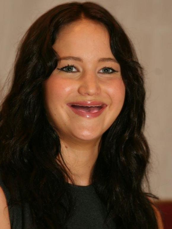 Jennifer Lawrence Without Teeth